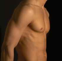 Male Breast Reduction - Gynecomastia Surgery