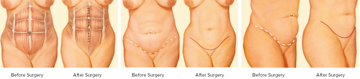 Tummy Tuck (Abdominoplasty) in Salt Lake City Utah